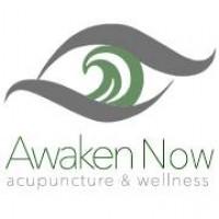 Awaken Now Acupuncture & Wellness