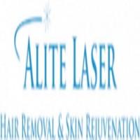 Alite Laser Hair Removal